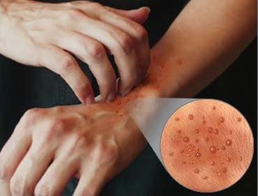 dermatitis1
