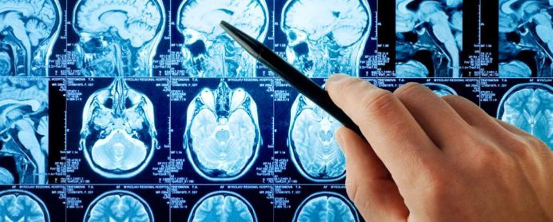 neurological-disorders-symptom